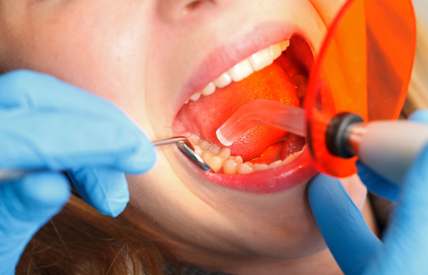Why Would Dental Bonding Be Needed